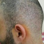 3250-grafts-hair-transplant-results (5)