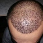 3250-grafts-hair-transplant-results (8)