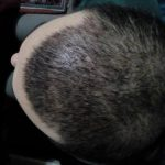 3250-grafts-hair-transplant-results (9)