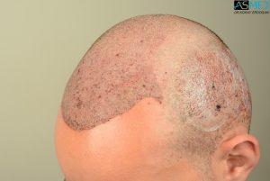 4000-grafts-hair-transplant (10)