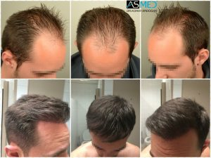 4000-grafts-hair-transplant (11)