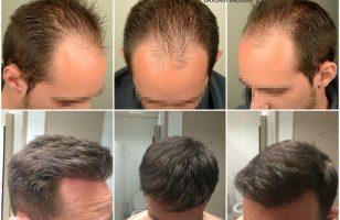 4000-grafts-hair-transplant (11)