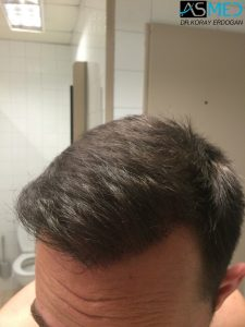 4000-grafts-hair-transplant (3)
