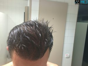4000-grafts-hair-transplant (4)