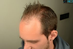 4000-grafts-hair-transplant (7)