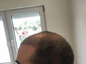 emrah-cinik-hair-transplant-center (10)