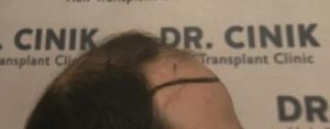emrah-cinik-hair-transplant-center (11)