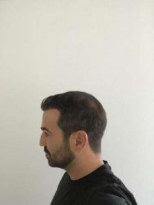 emrah-cinik-hair-transplant-center (14)