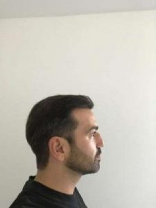 emrah-cinik-hair-transplant-center (15)