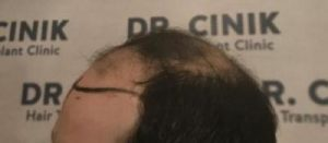 emrah-cinik-hair-transplant-center (18)