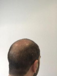 emrah-cinik-hair-transplant-center (20)