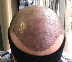 emrah-cinik-hair-transplant-center (22)