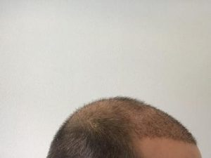 emrah-cinik-hair-transplant-center (27)