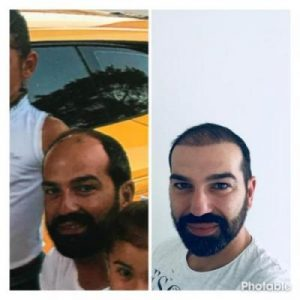 emrah-cinik-hair-transplant-center (28)