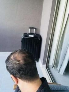 emrah-cinik-hair-transplant-center (5)