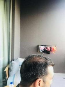 emrah-cinik-hair-transplant-center (6)