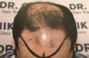 emrah-cinik-hair-transplant-center (8)