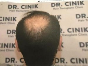 emrah-cinik-hair-transplant-center (9)