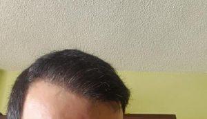 zekeriya-kul-hair-transplant-result (1)