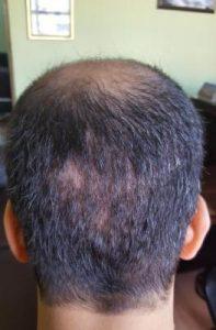 zekeriya-kul-hair-transplant-result (19)