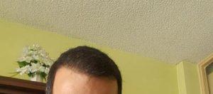 zekeriya-kul-hair-transplant-result (2)