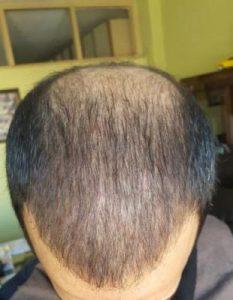 zekeriya-kul-hair-transplant-result (21)