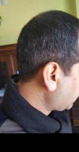 zekeriya-kul-hair-transplant-result (23)