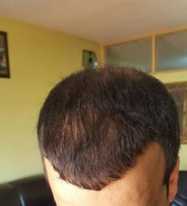zekeriya-kul-hair-transplant-result (28)