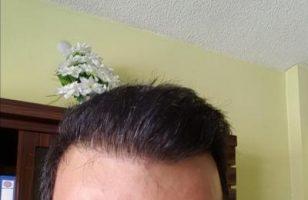 zekeriya-kul-hair-transplant-result (3)