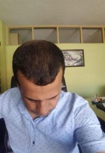 zekeriya-kul-hair-transplant-result (34)