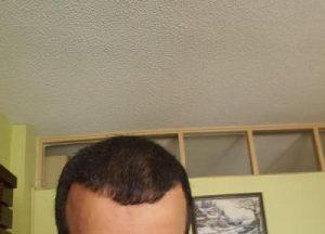 zekeriya-kul-hair-transplant-result (36)