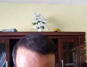 zekeriya-kul-hair-transplant-result (6)