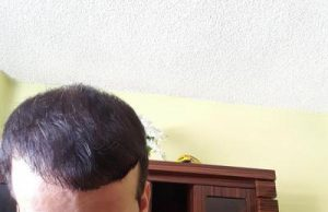 zekeriya-kul-hair-transplant-result (7)