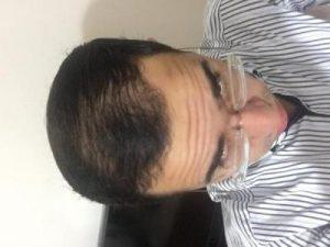 3650-grafts-hair-transplant (1)