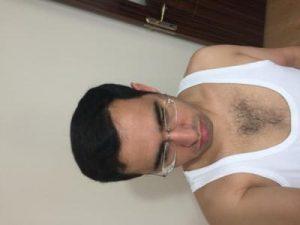 3650-grafts-hair-transplant (17)