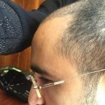3650-grafts-hair-transplant (7)