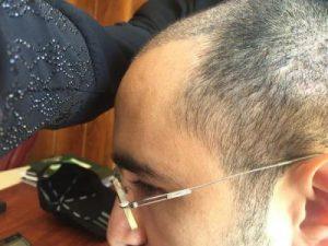 3650-grafts-hair-transplant (7)