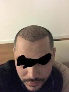 asmed-hair-transplant-results (14)
