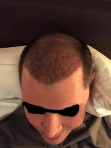 asmed-hair-transplant-results (15)