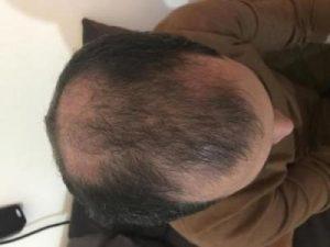 asmed-hair-transplant-results (16)