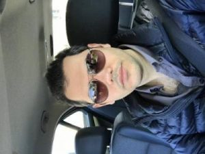 asmed-hair-transplant-results (30)