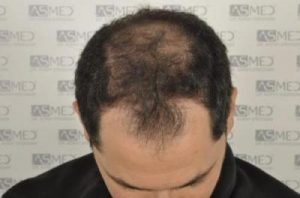 asmed-hair-transplant-results (5)