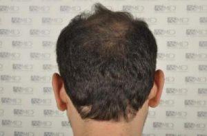 asmed-hair-transplant-results (6)