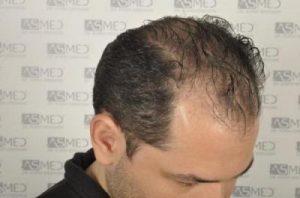 asmed-hair-transplant-results (8)