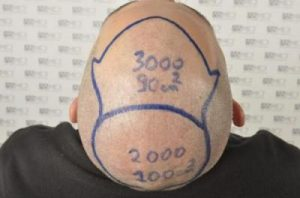 asmed-hair-transplant-results (9)