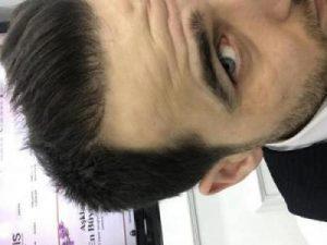 dr-kul-hair-transplant-result (1)