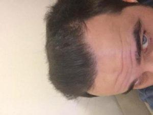 dr-kul-hair-transplant-result (41)