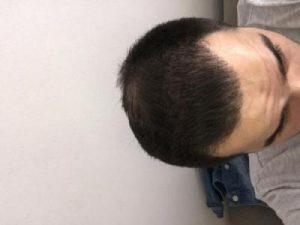 dr-kul-hair-transplant-result (43)
