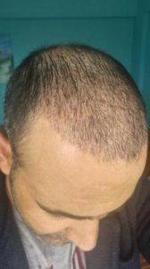 zekeriya-kul-hair-transplant-results (1)