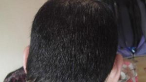 zekeriya-kul-hair-transplant-results (10)